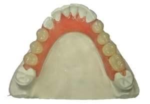 Tandprotese behandling