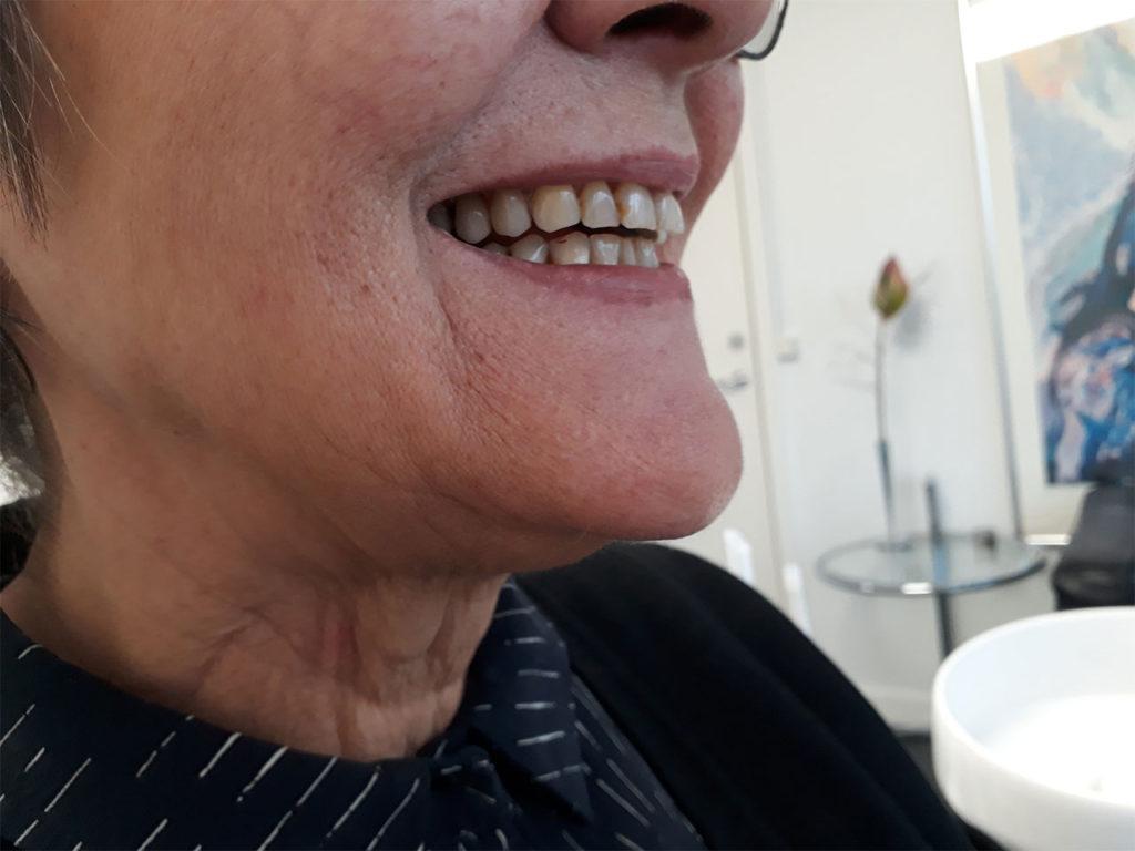 Tandprotese behandling færdig resultat