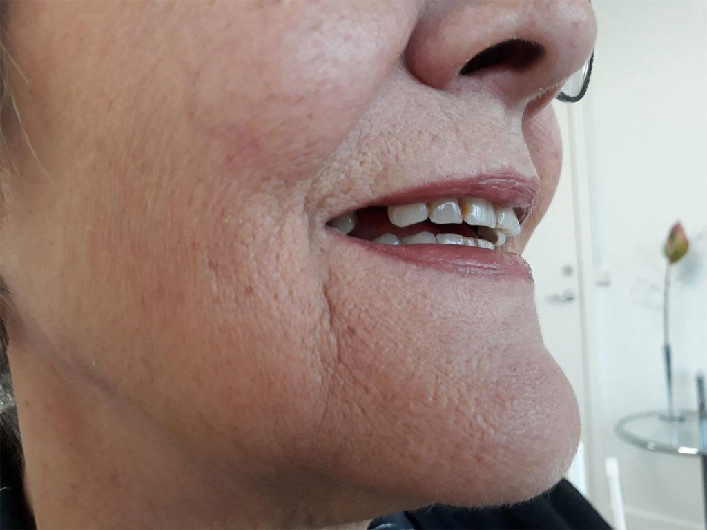 Tandprotese før protese behandling